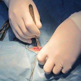 xirurgia